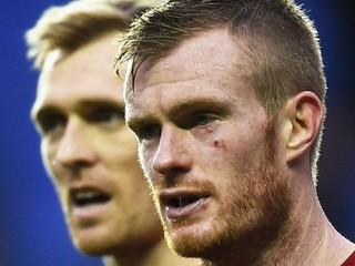 Hráča po zápase FA Cupu trafil vlastný fanúšik mincou blízko oka